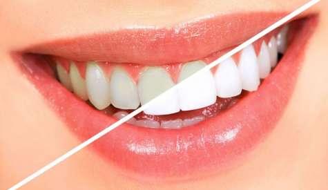 Увреждат ли се зъбите след избелване